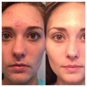 Voor en na acne