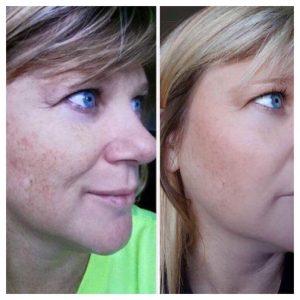 Voor en na egale huid