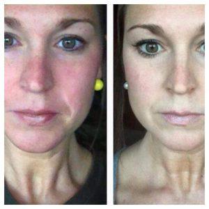 Voor en na rode huid